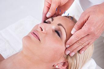 Akupunktur in der Augenheilkunde